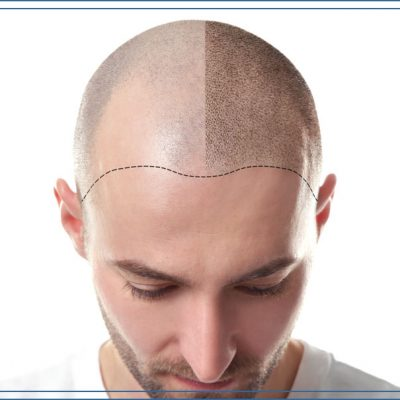Scalp-pigmentation